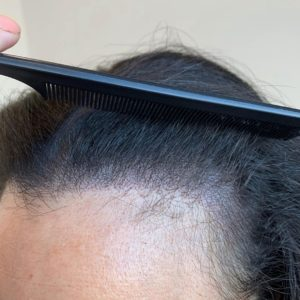 Attaccatura-dei-capelli