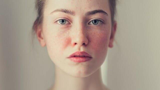 crema-viso-per-rosacea